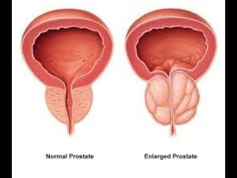 ¿Con qué frecuencia masaje de la próstata preventiva