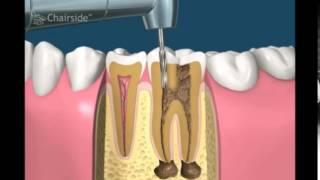 Мед. обработка корневых каналов, пломбирование гуттаперчей и гидроокисью кальция. Лечение.