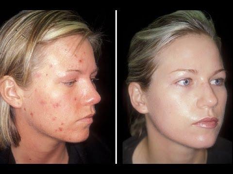 Patch ng wrinkles sa ilalim ng mga mata review