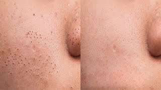 How to Remove Blackheads from Face At Home Naturally In One Day