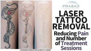 How Tattoos Removal can be Done with Less Pain, and Fewer Treatment Sessions