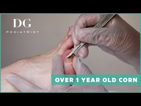 Peritoneal cancer how long to live