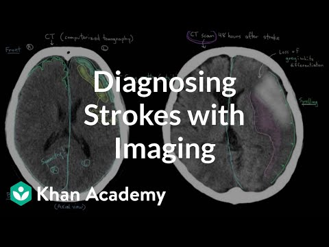 Diagnosing Strokes With Imaging Ct Mri And Angiography Video