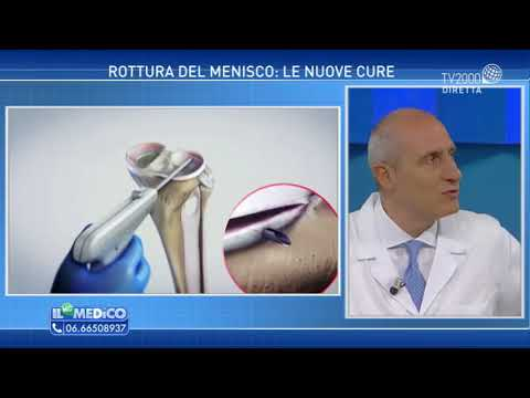 Video fisioterapia a osteocondrosi