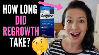 WHAT TO EXPECT WHEN STARTING ROGAINE OR MINOXIDIL, HOW LONG DOES IT TAKE TO WORK (And Weddings Talk)