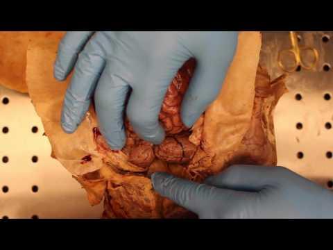 Otwarcie czaszki wraz z wyjęciem mózgowia