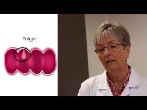 Kako se leci humani papiloma virus