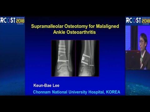 Teraflex tratează artroza