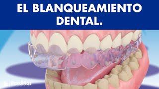 El blanqueamiento dental ©