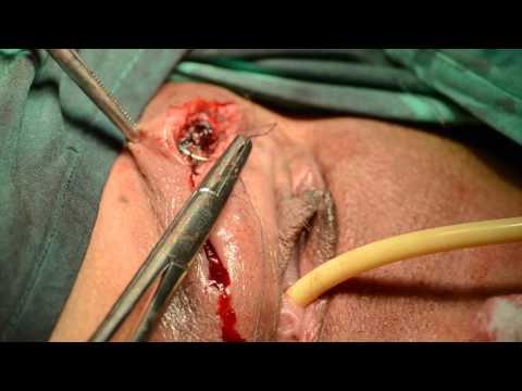 Az enterobius vermicularis fertőzést megszerzi
