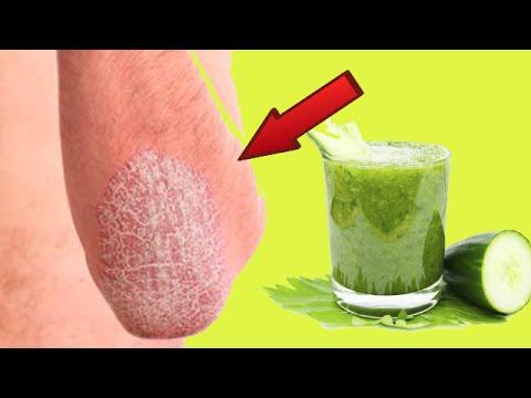 Si curan la psoriasis por la sosa