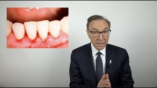 How To Treat Bleeding Gums At Home (2020)