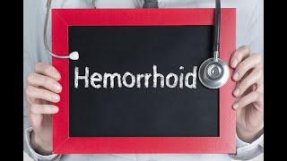 Hemorrhoids: Symptoms, Diagnosis, and Treatment Options - Emborrhoid a cure without surgery