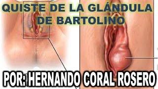 QUISTE DE LA GLANDE DE BARTOLINO