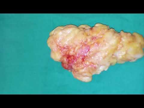 Sintomi una metastasi in reparto cervicale di una spina dorsale