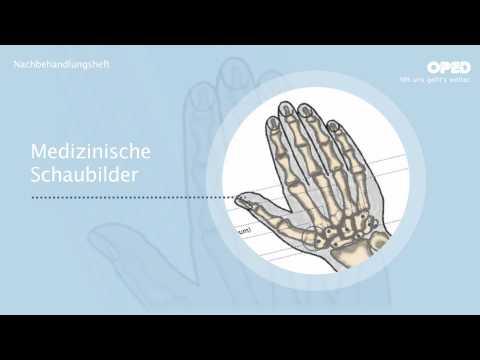 Wie entfernen Rückenschmerzen und Arm