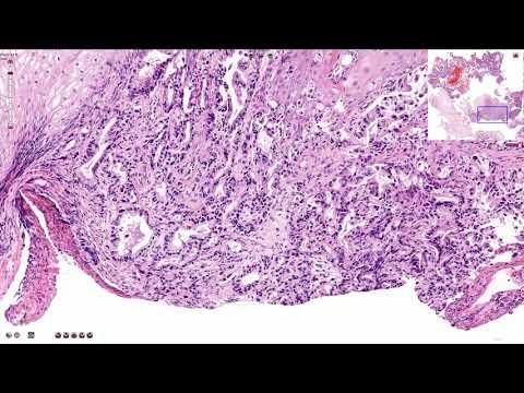 Human papillomavirus anogenital infection icd 10