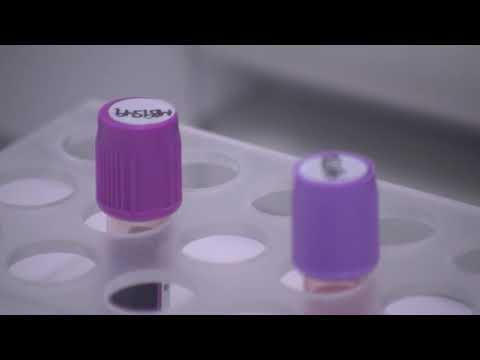 Toxoplasmoza transmitere