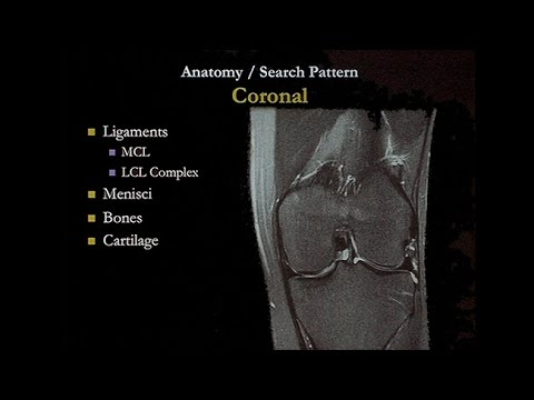 Ginnastica da osteochondrosis cervicale di uno shishonin di video