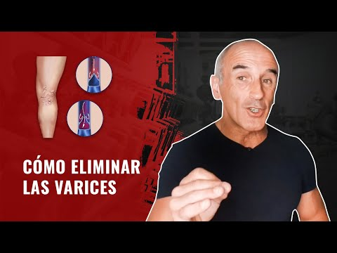 Varicoză genunchi și tratament varicos