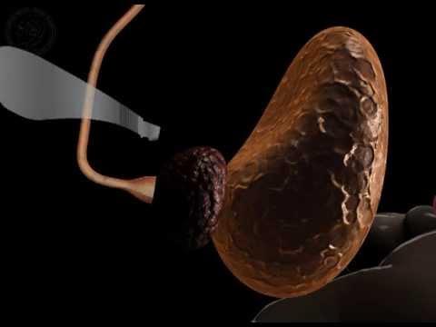 Prostatitis und Auswirkungen der Krankheit