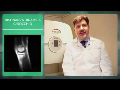 Osteoartrite delle articolazioni del grado piede 1