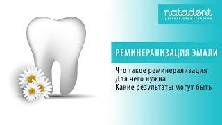 Что такое реминерализация эмали зубов? Натадент