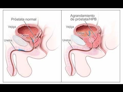 La prostatitis es un niño pequeño