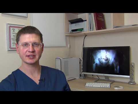 Боль в тазобедренном суставе, деформирующий остеоартроз (коксартроз)