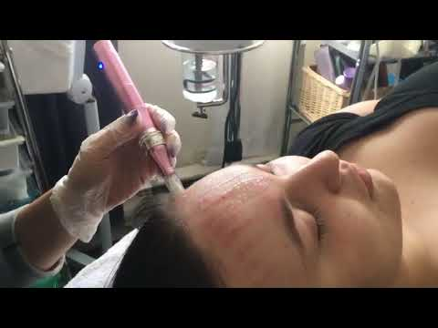 extenstion-cils-montreal-microneedling-esthetique-soin