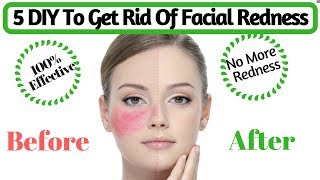 Natural Tips To Get Rid Of Facial Redness   How to Cure Red, Irritated Skin   AVNI