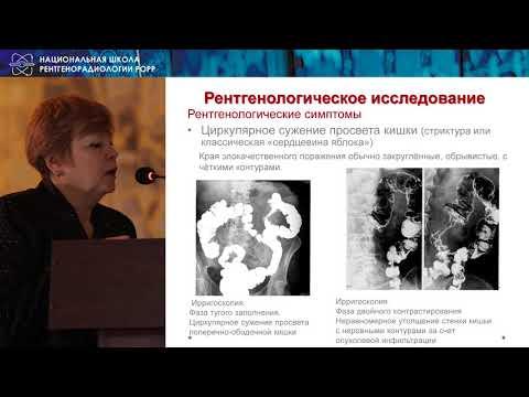 Сташук Г.А.   Рак ободочной кишки