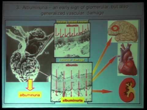 Distonía vegetativa crisis hipertónica