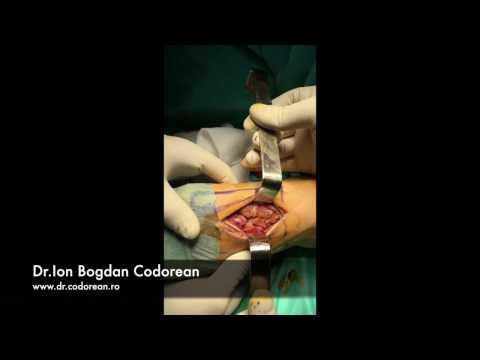 Artrosi del dispositivo laser di trattamento ginocchio