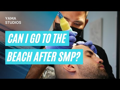 Can I Go To The Beach After Scalp Micropigmentation? An SMP Practitioner Explains