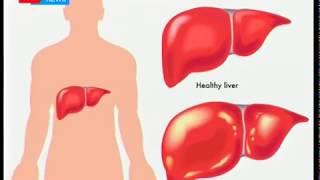 Health Digest - 27th July 2017 - Kenya joins the world in marking World Hepatitis Day