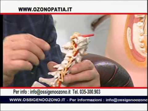 Trattamento della malattia degenerativa del disco del ernia del disco della colonna vertebrale cervi