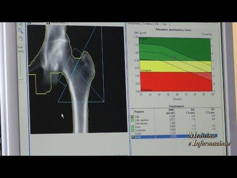 Segni di articolazioni dislocate