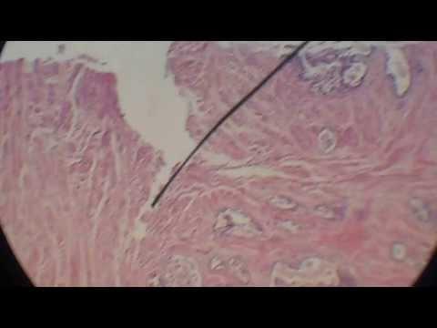 Рецидив рака простаты после облучения