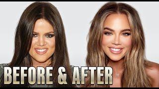 Khloe Kardashian: Plastic Surgery (2020)