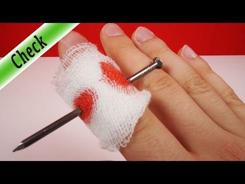Die Behandlung gribok auf den Fingern der Beine mit dem Jod und dem Salz
