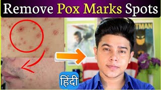 How to Remove Chicken Pox Marks from face in  हिंदी | Home Remedy | 100 % Result