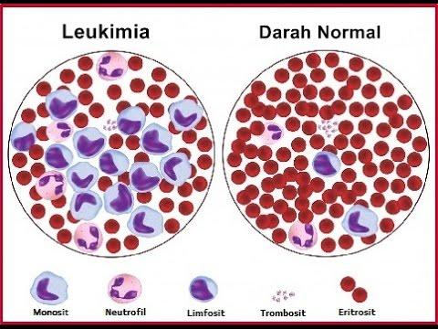 Video Gejala gejala penderita leukimia