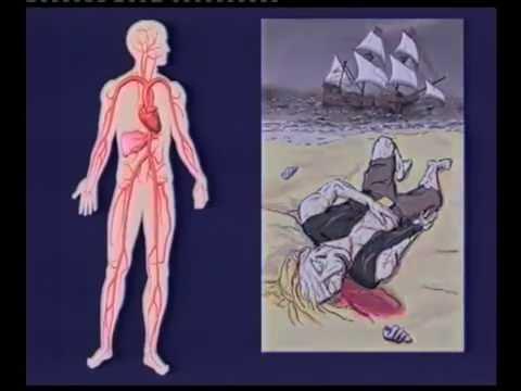 Arterienverkalkung - Lehrvideo der Dr. Rath Gesundheits-Allianz