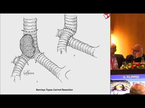 D. Filippou - Operations for preservation of lung parenchyma in lung cancer