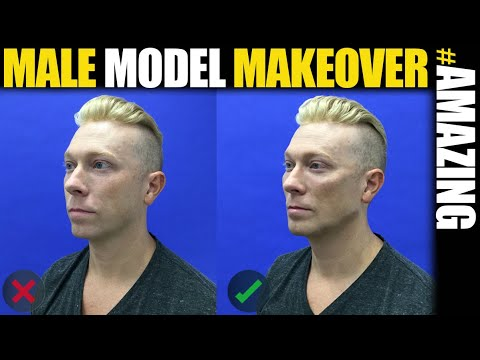Male Model Makeover with Facial Filler by Dr. Steinbrech #8