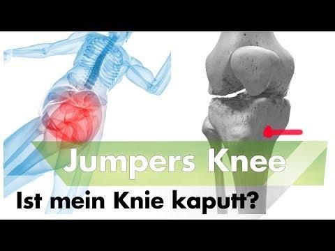Rückenschmerzen und Beinschmerzen