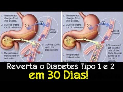 Medicina tailandesa para diabetes