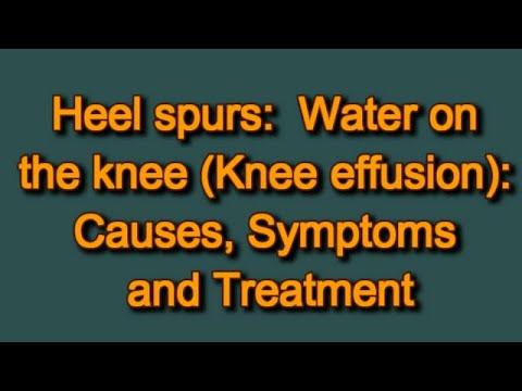 Knöchelverletzung