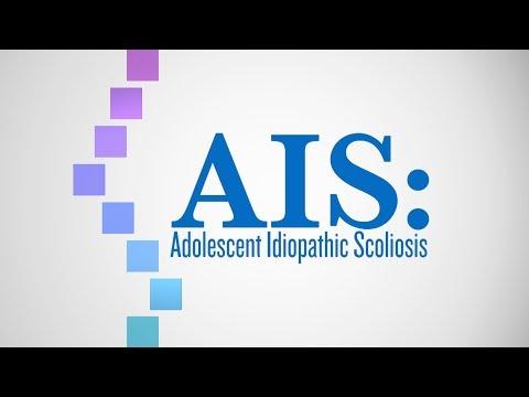 Trattamento di scoliosis a bambini di 7 anni